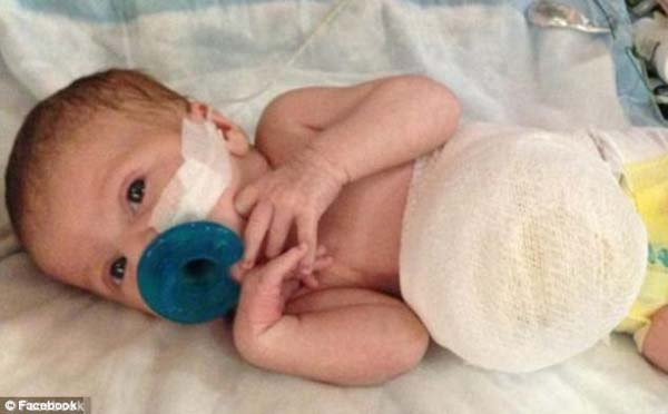 His mother Kelsea first learned about the disorder when she got her 19 week ultrasound; it showed the sac growing on the outside of his body. When Hayden was born, he gave a healthy cry - it was a miracle.