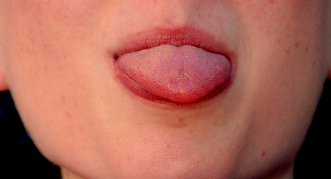 1.) Sticking Out Tongue - Tibet